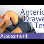 Anterior Drawer Test (Knee) - Physical Exam