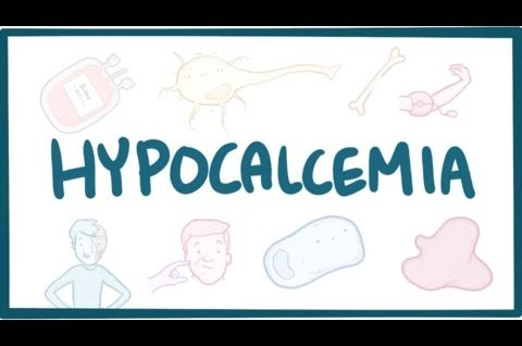 Hypocalcemia - causes, symptoms, diagnosis, treatment, pathology