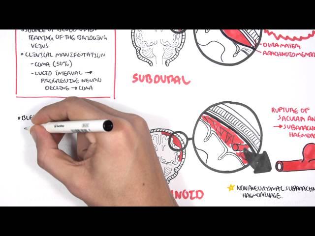 Intracranial Haemorrhage Types