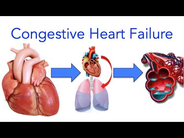 Congestive Heart Failure (CHF) Signs and Symptoms, Diagnosis and Treatment