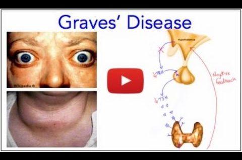 Graves Disease - Hyperthyroidism
