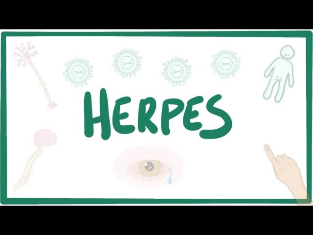 Herpes (oral & genital) - causes, symptoms, diagnosis, treatment, pathology