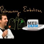 Pulmonary Embolism - Signs and Symptoms, Diagnosis, Treatment