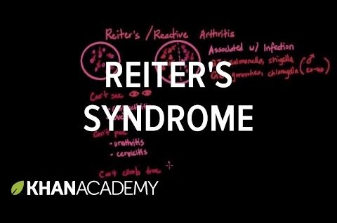 Reiter's syndrome | Muscular-skeletal diseases | NCLEX-RN | Khan Academy