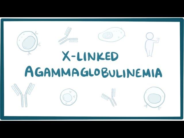 X linked agammaglobulinemia (Bruton agammaglobulinemia) - causes & symptoms