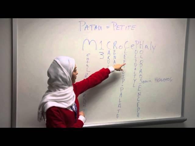Patau Syndrome  Mnemonic