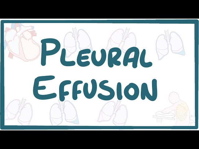 Pleural Effusion - causes, symptoms, diagnosis, treatment, pathology