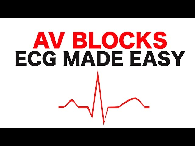 AV Blocks (1st, 2nd, and 3rd Degree)