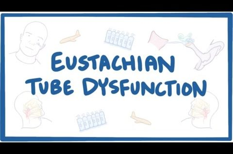Eustachian tube dysfunction (ETD) - causes, symptoms, diagnosis, treatment, pathology