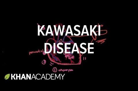 Kawasaki disease: diagnosis and treatment | Circulatory System and Disease | NCLEX-RN | Khan Academy
