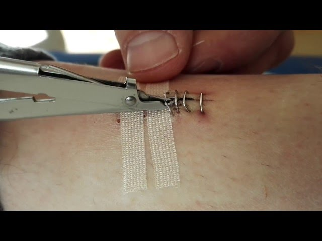 How to Remove Surgical Staples