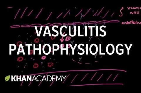 Vasculitis pathophysiology | Circulatory System and Disease | NCLEX-RN | Khan Academy