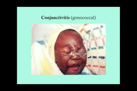 Conjunctivitis - CRASH! Medical Review Series