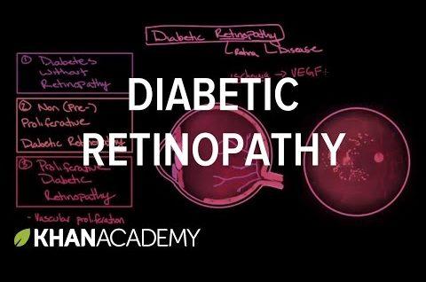 Diabetic retinopathy | Endocrine system diseases | NCLEX-RN | Khan Academy