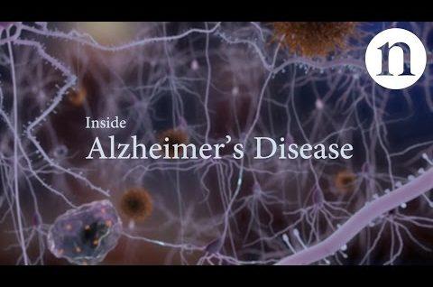 Inside Alzheimer's disease