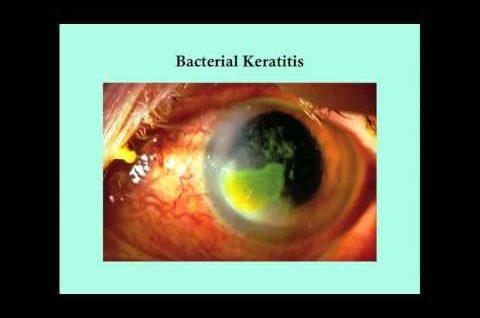 Keratitis - CRASH! Medical Review Series