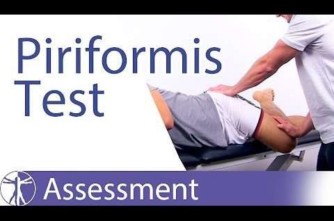 Piriformis Test ⎟ Piriformis Syndrome or Tightness