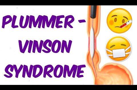 Plummer–Vinson syndrome