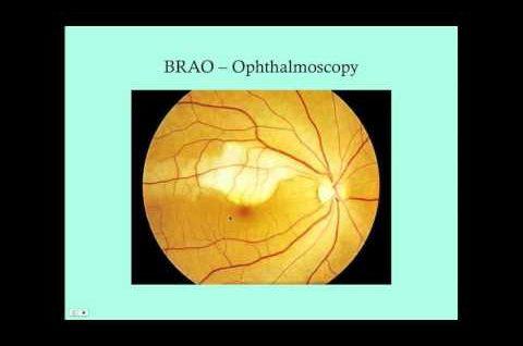 Retinal Vascular Disorders - CRASH! Medical Review Series