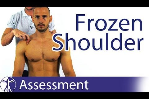 True or Pseudo Frozen Shoulder? | Adhesive Capsulitis Diagnosis