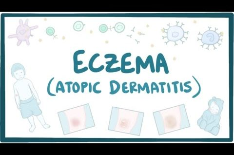 Eczema (atopic dermatitis) - causes, symptoms, diagnosis, treatment, pathology