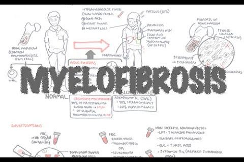 Myelofibrosis (DETAILED) Overview