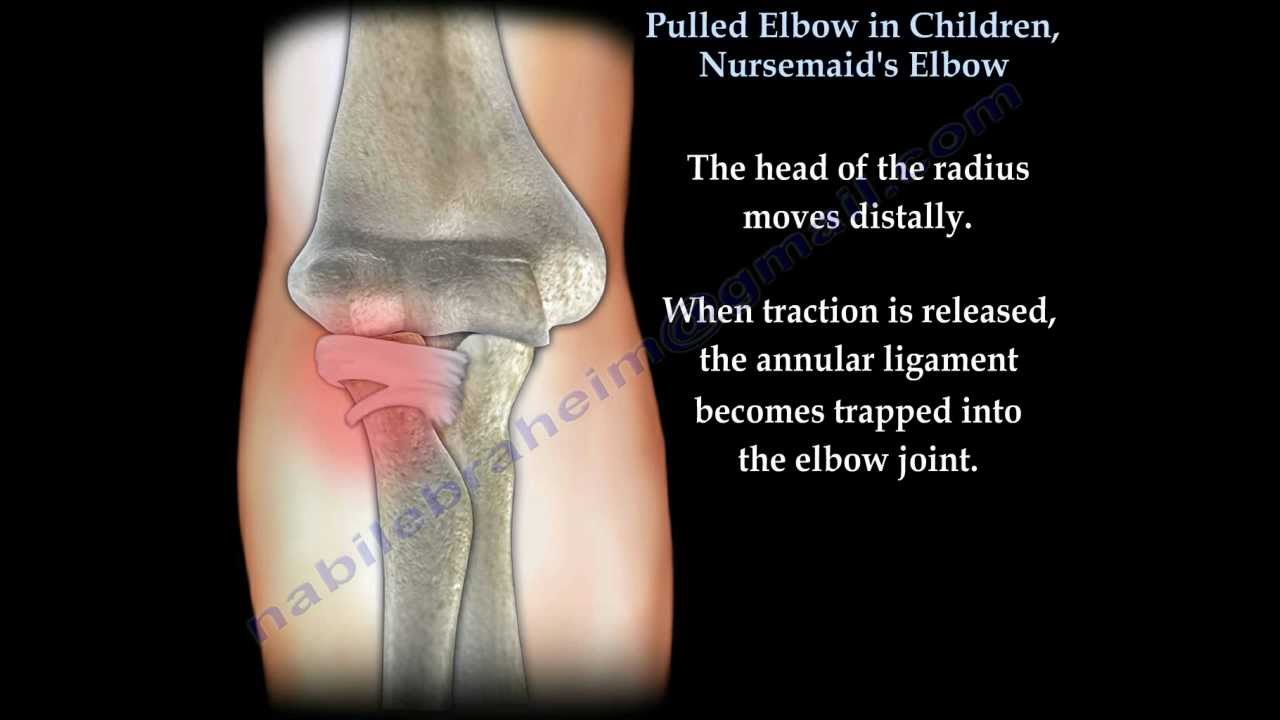 Pulled Elbow In Children, Nursemaid's Elbow - Everything You Need To Know - Dr. Nabil Ebraheim