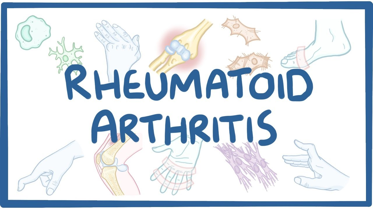 the causes diagnosis treatment and prevalence of rheumatoid arthritis If you have untreated pain and stiffness from your rheumatoid arthritis, you may avoid physical activity that worsens these symptoms over time this can cause a type of muscle atrophy called disuse atrophy .