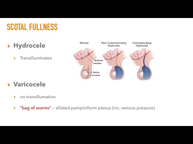 Epididymitis vs. Torsion vs. Hydrocele vs. Varicocele