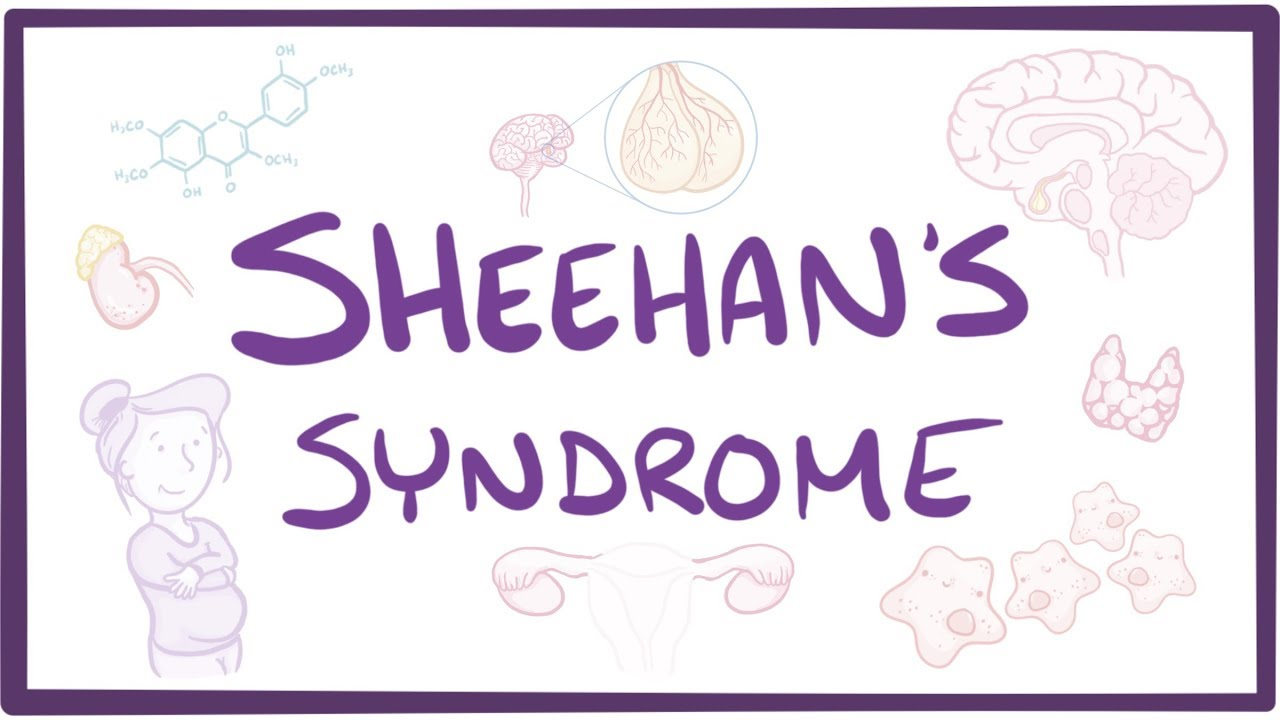 Sheehan's Syndrome - causes, symptoms, diagnosis, treatment, pathology