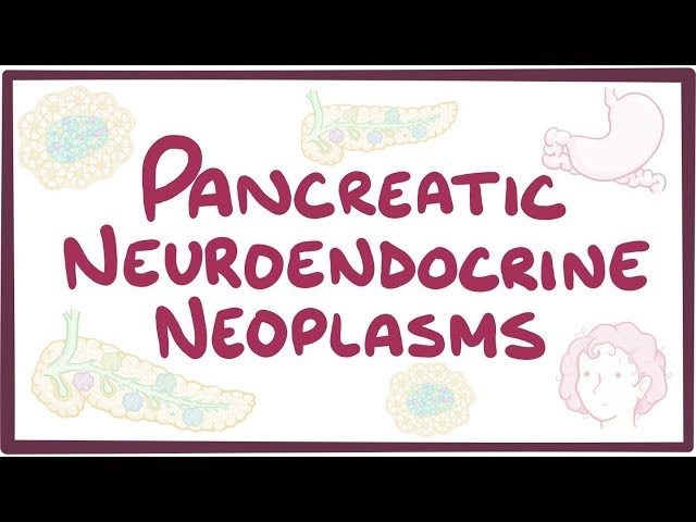 Pancreatic neuroendocrine neoplasms- causes, symptoms, diagnosis, treatment, pathology