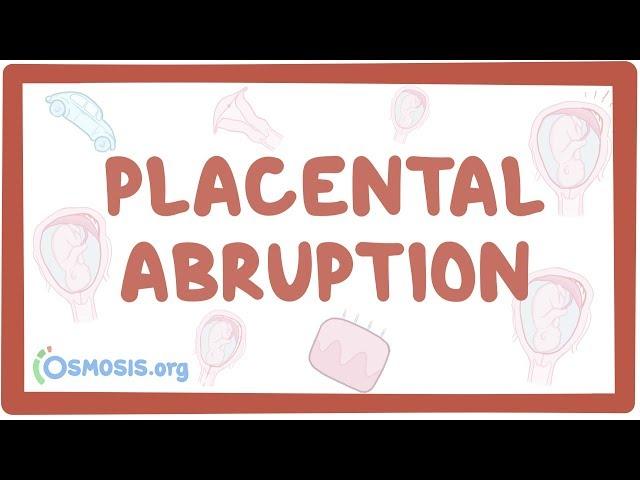 Placental abruption - causes, symptoms, diagnosis, treatment, pathology