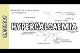 Hypercalcemia in malignancy - causes, pathophysiology, symptoms, treatment