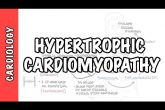 Hypertrophic cardiomyopathy - signs and symptoms, causes, pathophysiology, treatment