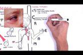 Kawasaki Disease vasculitis - symptoms,  pathophysiology, treatment