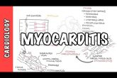 Myocarditis - causes, pathophysiology, investigation and treatment